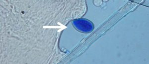 view of pathogen in microscope